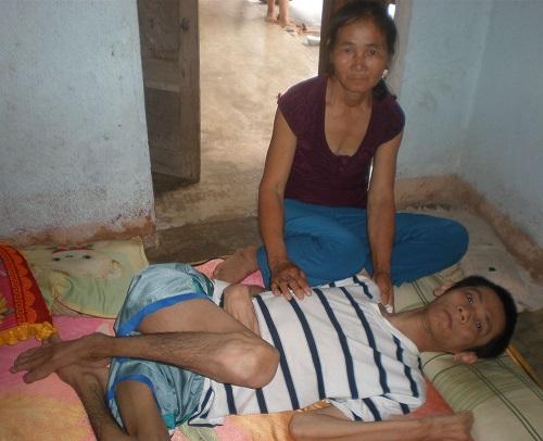 Biến chứng của bệnh gây bại liệt