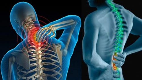 Cơ chế hình thành và nguyên nhân gai cột sống
