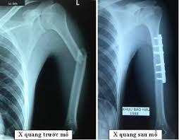 Cách chăm sóc người bệnh gãy xương cánh tay nhanh lành