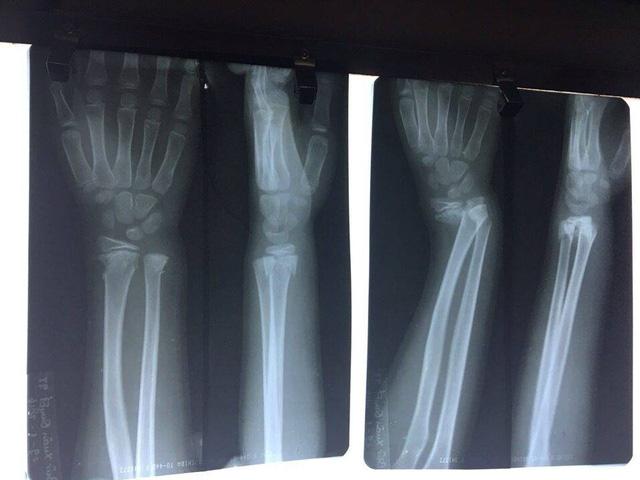Nứt xương có cần bó bột không?