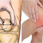 Tổng hợp cách chữa tràn dịch khớp gối phổ biến nhất hiện nay