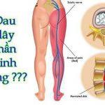 Hội chứng rễ thần kinh hông luôn gây ra các phiền toái nhất định