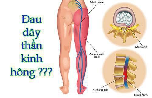đau cột sống gần mông do dây thần kinh to