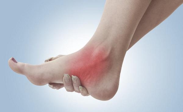 sưng khớp cổ chân