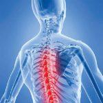Bệnh lý xương khớp gây những cơn đau xương cột sống lưng khó chịu