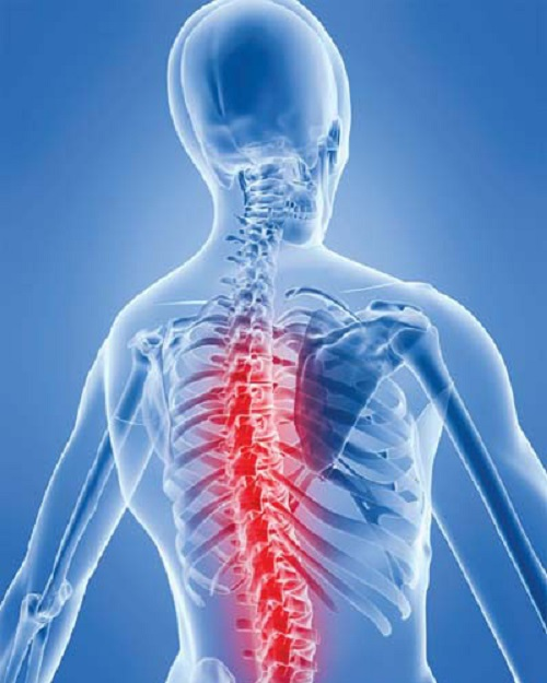 Đau xương cột sống lưng bởi viêm khớp lưng