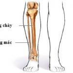 Bị gãy xương mác cẳng chân có thực sự nguy hiểm