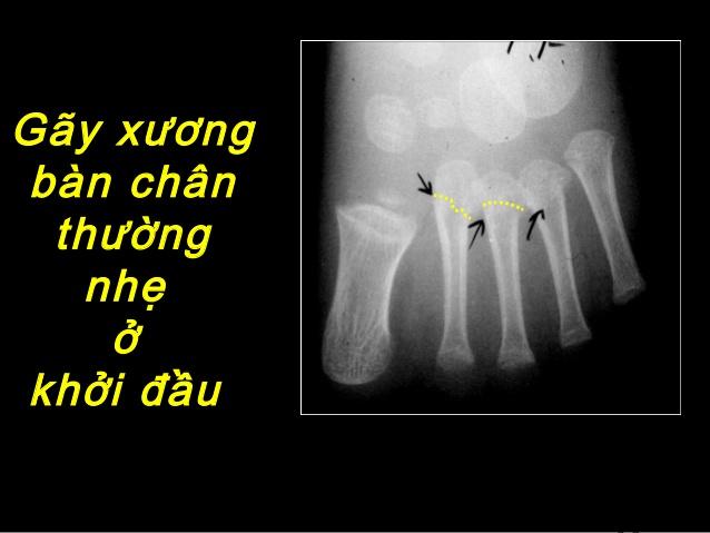 Hiện tượng gãy xương bàn chân số 5