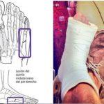 Gãy xương bàn chân số 5 nguy hiểm như thế nào và cách điều trị nhanh chóng