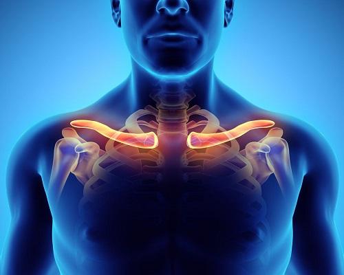 Cách phương pháp điều trị gãy xương đòn