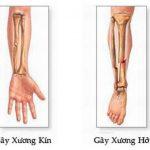 Gãy xương kín là gì và những nguy cơ tiềm ẩn nguy hiểm
