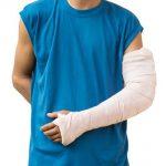 Gãy tay bó bột trong bao lâu và biện pháp để hồi phục nhanh chóng
