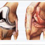 Chấm dứt tình trạng cứng khớp gối sau phẫu thuật với 4 cách làm