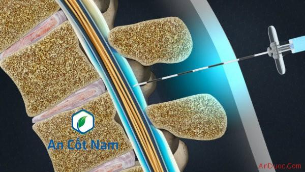 Khái niệm kỹ thuật tiêm cạnh cột sống thắt lưng là gì?