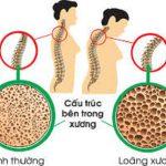 Nắm rõ thông tin loãng xương có mấy cấp độ để phòng ngừa tốt nhất