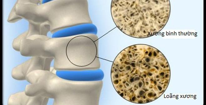 Tỷ lệ loãng xương ở việt nam