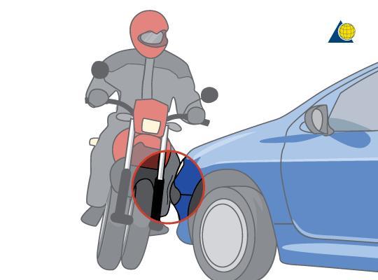 Nguyên nhân gãy xương do tai nạn giao thông
