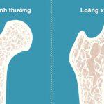 Nhức chân từ đầu gối trở xuống là dấu hiệu cảnh báo 4 bệnh nguy hiểm sau đây