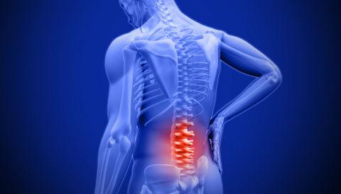 Thoái hóa cột sống có thể xảy ra ở vùng cổ, lưng, vai gáy...