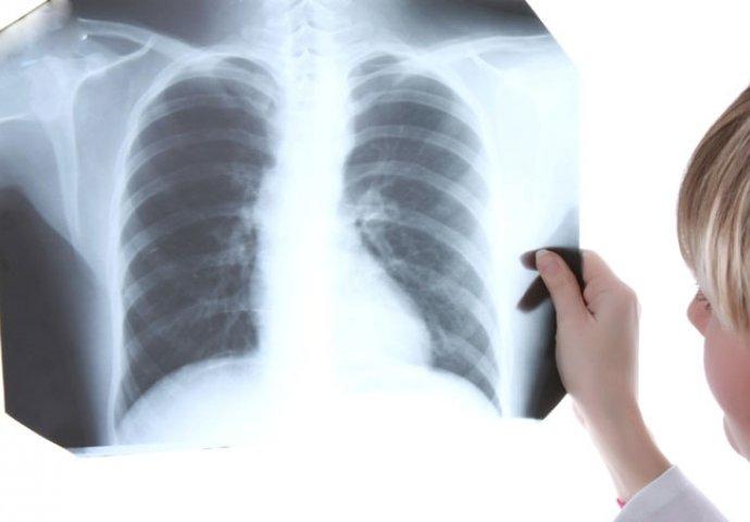 Biểu hiện rõ rệt khi bị ung thư phổi di căn vào xương