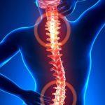 Bệnh thoái hóa cột sống là gì, nguyên nhân, triệu chứng và cách điều trị