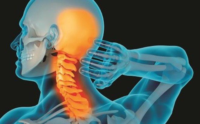 Khái niệm về thoái hóa đốt sống cổ chèn dây thần kinh như thế nào?