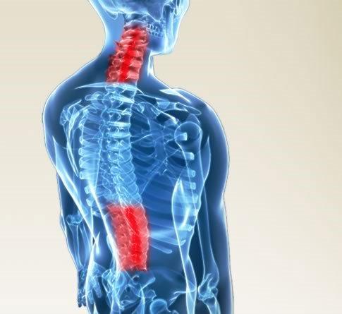 Những ảnh hưởng nghiêm trọng khi bạn bị thoái hóa cột sống cổ