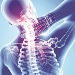 Nguyên nhân, biểu hiện và cách chữa thoái hóa đĩa đệm cột sống cổ