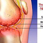 Hiện tượng đau các khớp ngón tay là bệnh gì nhiều người chưa biết