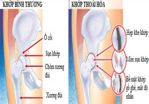 thoái hóa khớp háng và cách điều trị