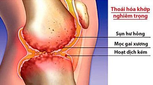 Thoái hóa khớp gây đau ngón tay