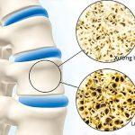 2 Loại thuốc chống loãng xương cho người già