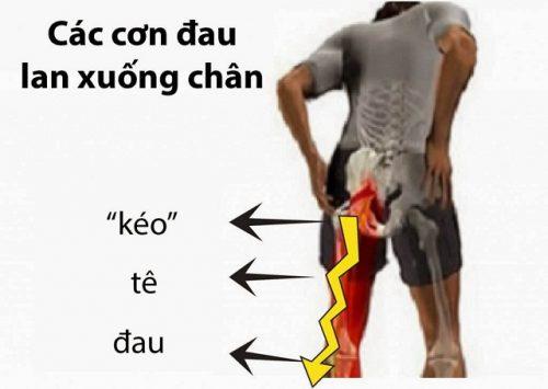 Triệu chứng gai cột sống lưng