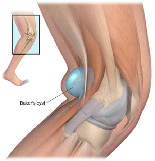 Thế nào là u bao hoạt dịch khoeo chân