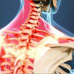 Tổng quan về bệnh viêm dây thần kinh vai gáy
