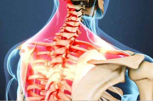 Viêm dây thần kinh vai gáy là gì?