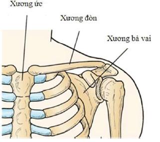 Điều trị gãy xương đòn di lệch