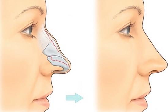 Cấu tạo xương mũi