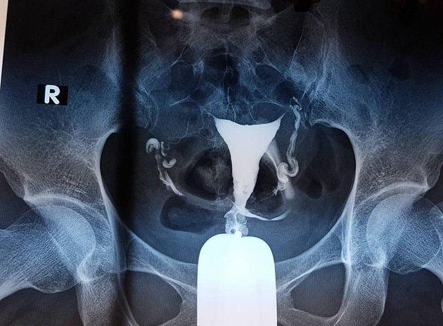 Phương pháp chụp tử cung vòi trứng là gì?