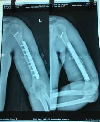 Tình trạng gãy xương cánh tay là như thế nào?