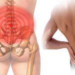 Giãn dây chằng lưng bao lâu thì khỏi trở lại vận động bình thường