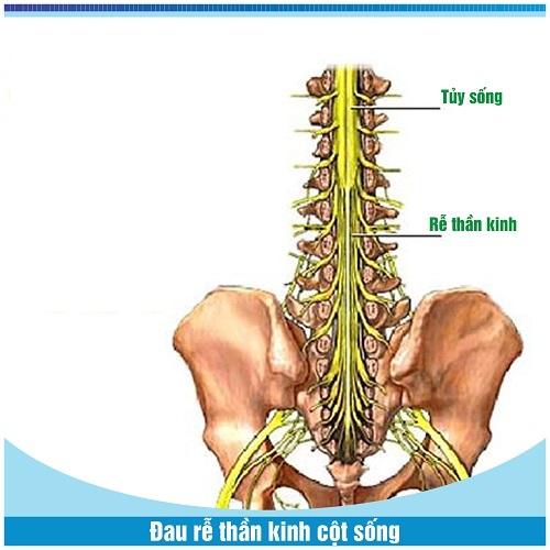Hiểu rõ chứng bệnh đau rễ thần kinh cột sống