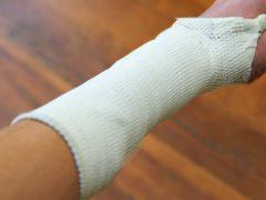 Gãy xương cẳng tay bao lâu thì lành