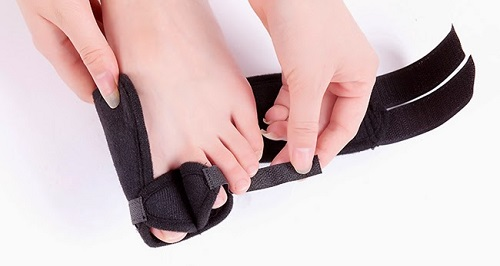 Bó nẹp khi bị gãy cương chân có lâu khỏi