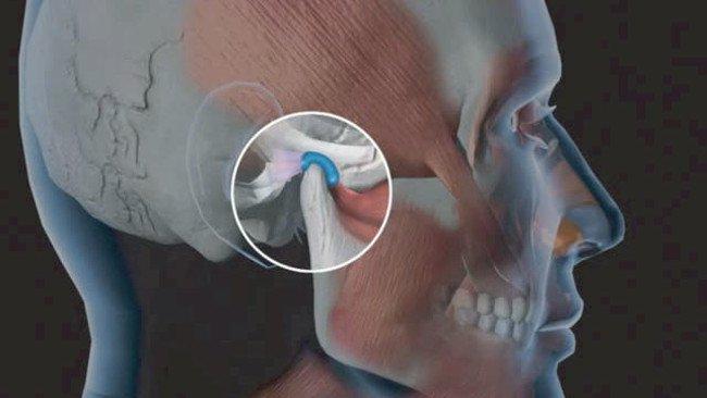 Cách phòng ngừa bệnhviêm khớp thái dương hàm