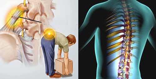 Nguyên nhân nào gây ra dập tủy sống lưng?