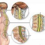 Dập tủy sống lưng và những biến chứng nặng nề