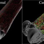 8 dấu hiệu của bệnh ung thư xương mà bạn cần biết