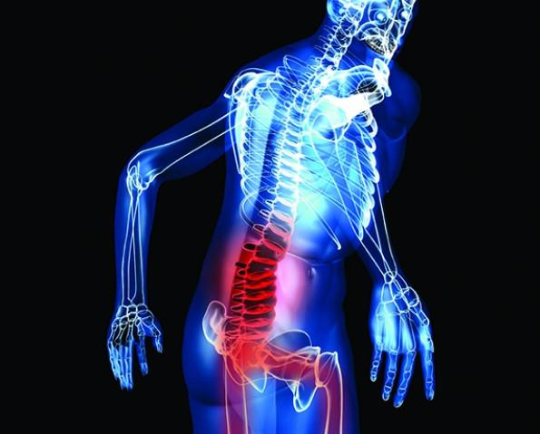 Chữa thoát vị đĩa đệm bằng đông y có điều trị dứt điểm được không
