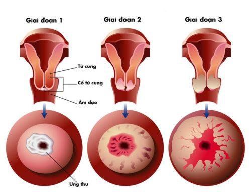đau lưng ra dịch nâu do nhiều bệnh ở nữ giới